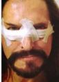 Никита Джигурда сделал пластическую операцию