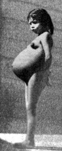 Лина МЕДИНА родила в возрасте 5 лет