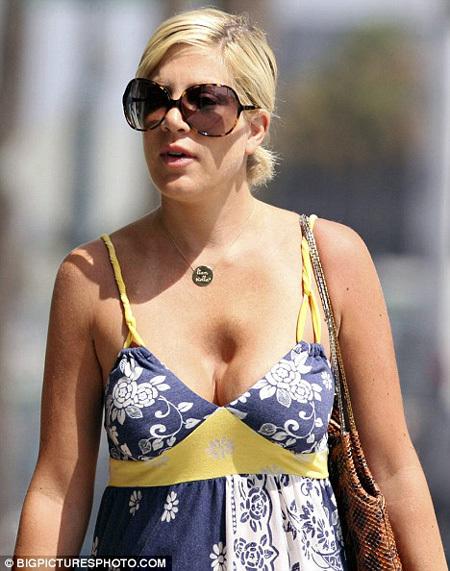 Проблемы с бюстом появились у звезды ещё два года назад - фото Daily Mail