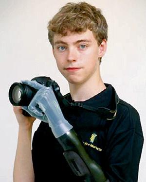 С бионической рукой Мэттью доступны любые манипуляции