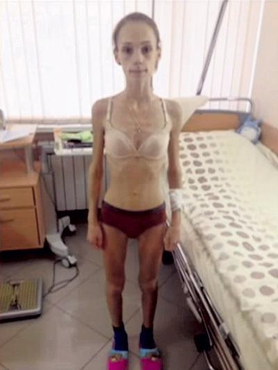 Так выглядела юная фигуристка в сентябре в одной из российских больниц. Кадр: «Прямой эфир»/Россия 1