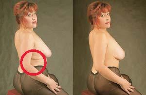 БЫЛА НИКЕМ, А СТАЛА ВСЕМ: убрали глубокие складки на боках, уменьшили живот и увеличили грудь