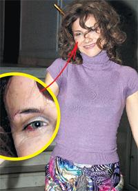 ИРА: при воспоминании об аварии её кидает в холодный пот