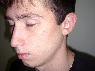17-летний Никита был зверски избит милиционерами. Фото: pytkam.net/