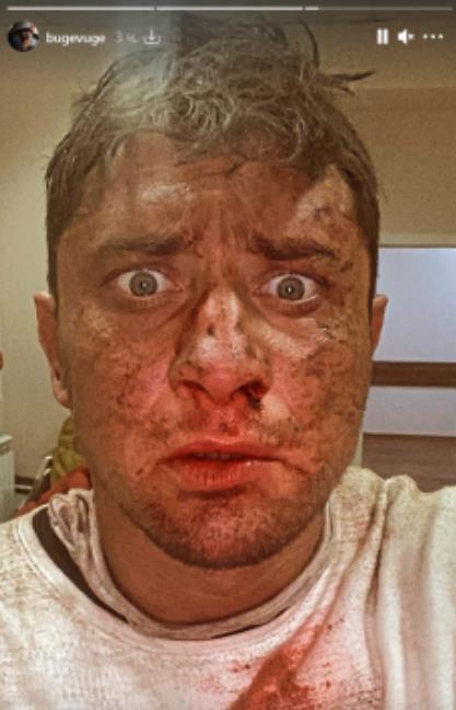 Павел Прилучный ужаснул внешним видом